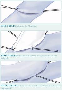 priprava tkane